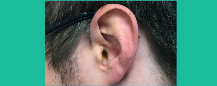 Trockenen Ohrenschmalz lösen